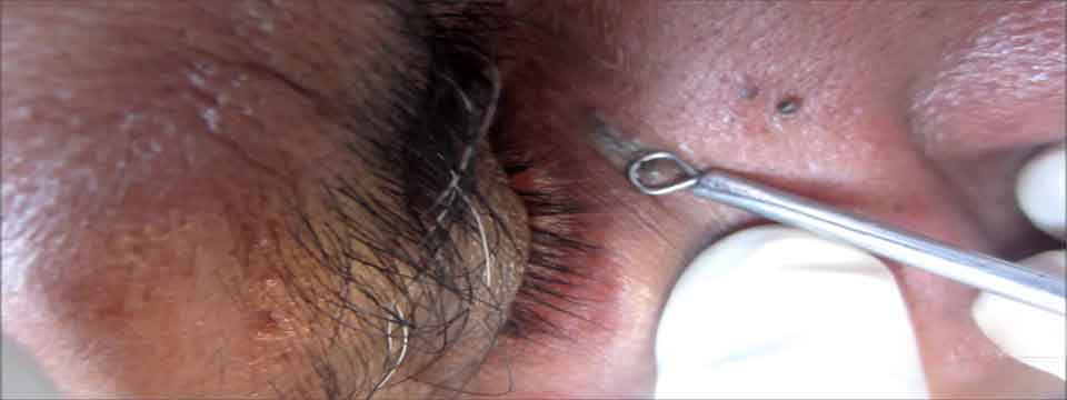 blackheads_treatment_cure