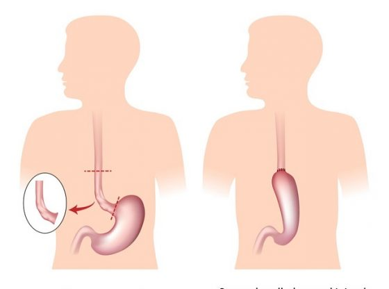 How Oesophageal Cancer treated