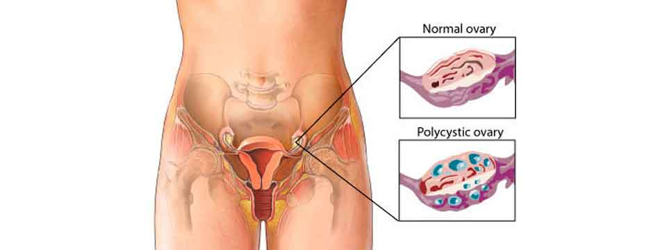 polycystic_ovary_syndrome_cure