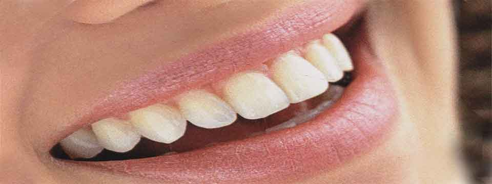 white_teeth_care