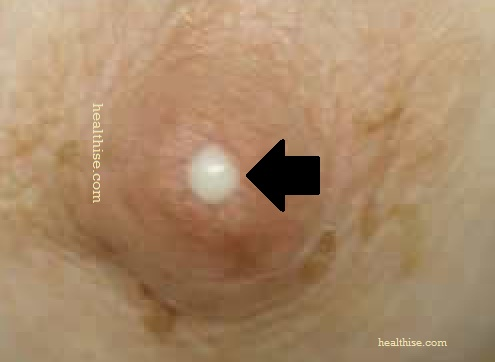 breast discharge heathise