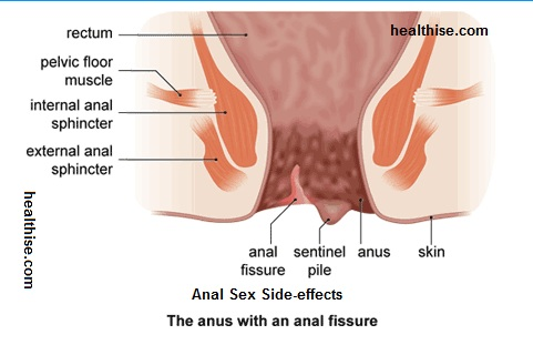 Side effects of anal intercourse