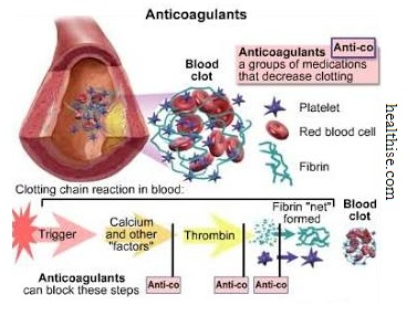 Anticoagulants - Enlarged Heart Cardiomegaly