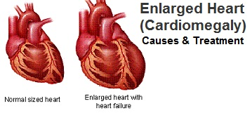 Cardiomegaly - Enlarged Heart Symptoms Causes and Treatment
