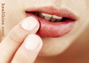 Cheilitis (Chapped Lips) - Ayurvedic Natural Home Remedies