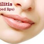 Cheilitis (Chapped Lips) : Ayurvedic Natural Home Remedies