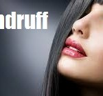 Dandruff : Ayurvedic Natural Home remedies