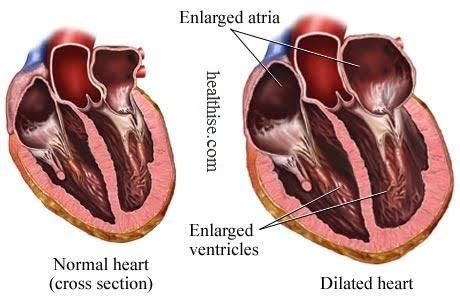 Enlarged Heart Cardiomegaly