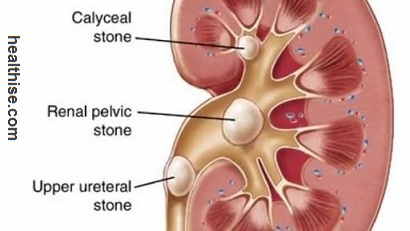 Kidney Stones Causes - Symptoms and Home Remedies