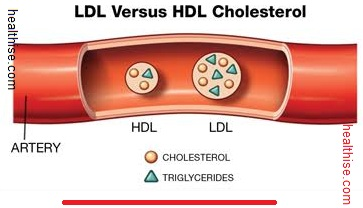 Cholesterol Low-density lipoproteins (LDL) and High-density lipoproteins (HDL)