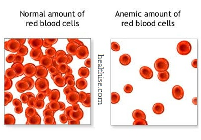 Low red blood cell count anemia - Enlarged Heart Cardiomegaly