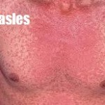 Measles Causes, Symptoms and Home Remedies