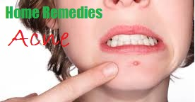 Natural Home Remedies For Acne treatment