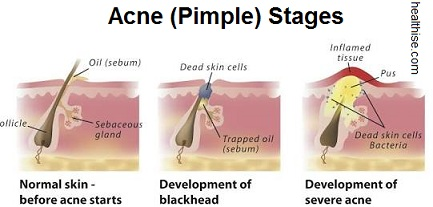 Pimple Diagram - Symptoms Causes and Home Remedies
