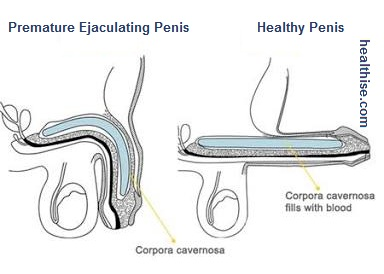 Premature ejaculation sperm discharge reasons treatment and cure