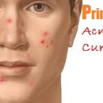 Primrose Oil for Acne Cure