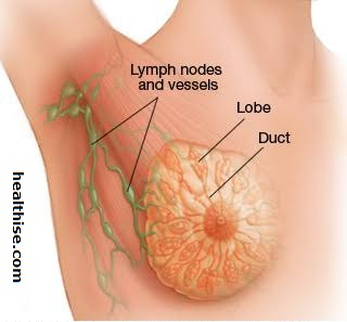 breast cancer lymph nodes and vessels