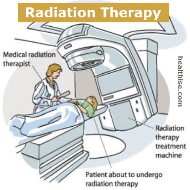 breast cancer radiation therapy