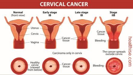 cervical cancer article explained