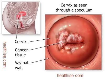 cervical cancer explained