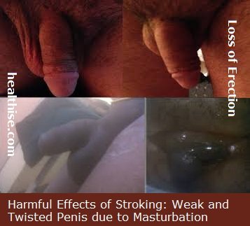 harmful effects of stroking penis due to masturbation