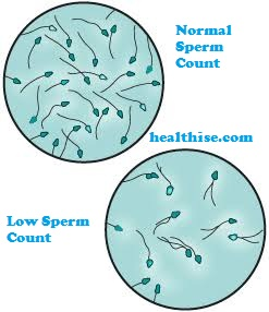 home remedies for sperm motility