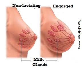 natural treatment on engorged breasts