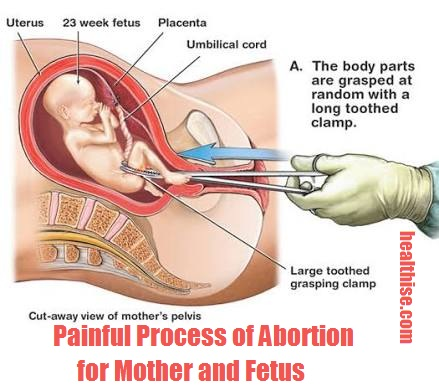 post abortion health risks and physical symptoms and precautions