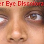 Causes And Treatment For Under Eye Discoloration: Home Remedies