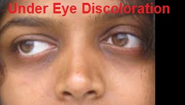 under eye discoloration home remedy treatment and causes