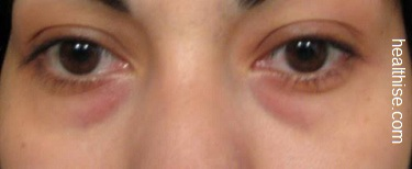 under eye discoloration treatment and causes