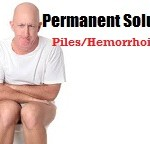 Ayurvedic Treatment for Piles Hemorrhoids