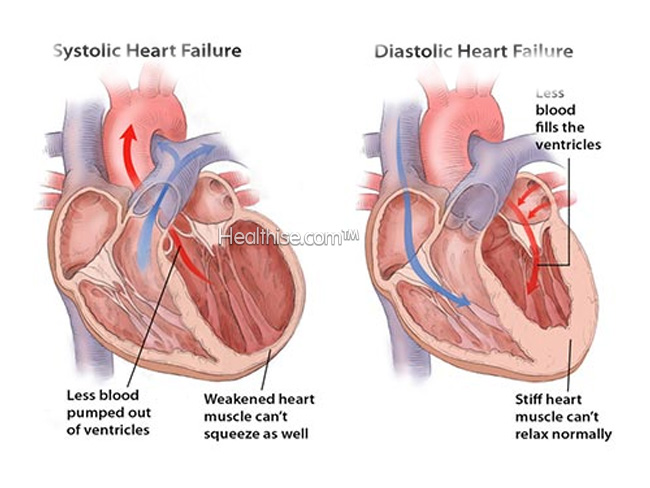 what is systolic diastolic heart failure