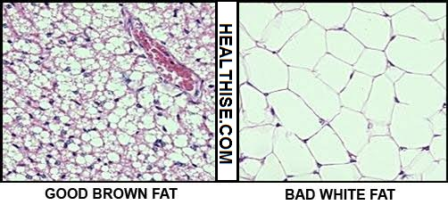 white fat vs bad fat