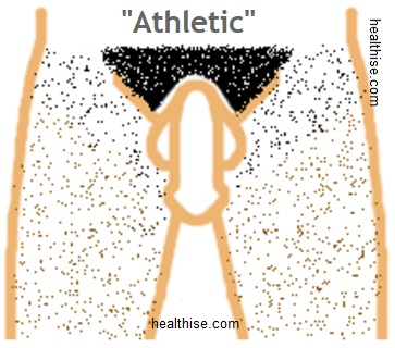 Athletic pubic hair style