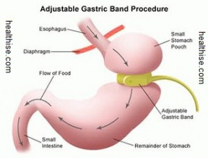 Bariatric surgery is a weight loss surgery
