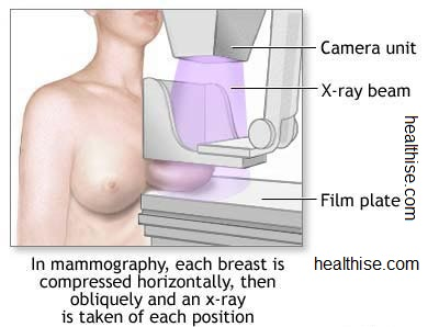 Mammogram breast cancer test