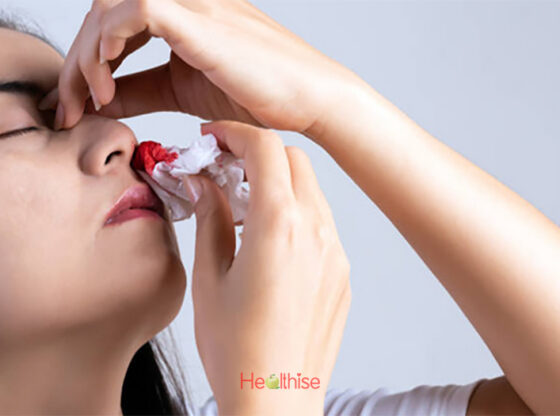 Nose Bleeding Epistaxis Causes Treatment Ayurveda Natural Home Remedies