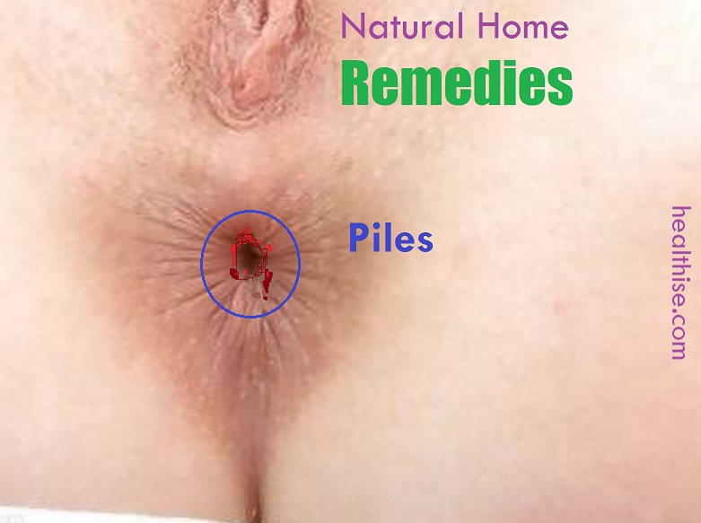Piles haemorrhoids fistula Ayurvedic Natural Home Remedies