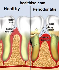 Pyorrhoea Periodontitis causes, symptoms and prevention - Ayurveda Natural Home Remedies