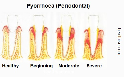 Pyorrhoea Periodontitis causes symptoms and prevention - Ayurveda Natural Home Remedies