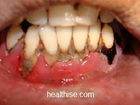 Pyorrhoea Periodontitis causes, symptoms and prevention - Ayurvedic Natural Home Remedies