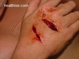 Wounds Types of Wounds and Ayurvedic Natural Home Remedies