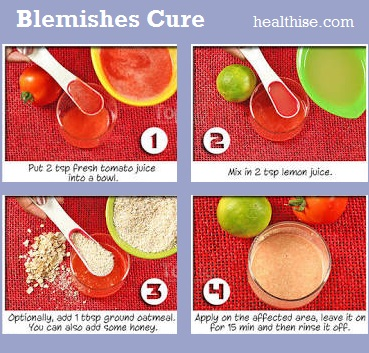 blemishes cure