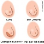 Types of Breast Lumps