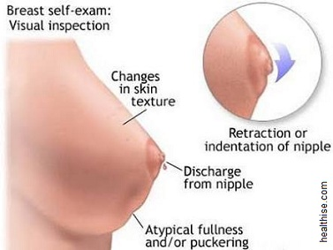 breast lumps inspection