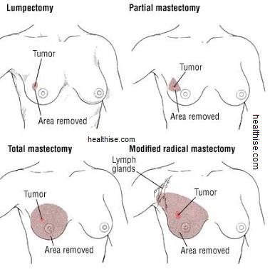 breast therapies