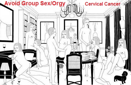 cervical cancer due to group sex orgy multipartner sex