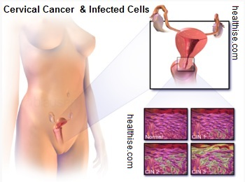 cervical cancer location and abnormal cells