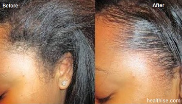 edge control olive oil to stop hair loss